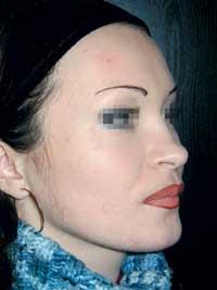 Эстетическая и функциональная коррекция кривого носа