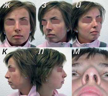 Отекший нос после ринопластики