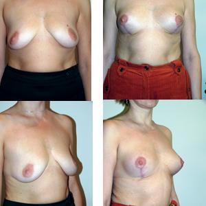 Аугментационная маммопластика. Случайные осложнения или неизбежные последствия