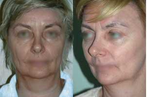 Выбор объема и тактики хирургической коррекции возрастных изменений лица и шеи в различных клинических ситуациях
