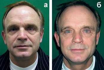 Малоинвазивная (закрытая) подтяжка тканей лица с помощью подвешивающих нитей: факт или декларация?