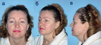 Как сделать лицо более привлекательным: мнение дерматокосметолога и пластического хирурга