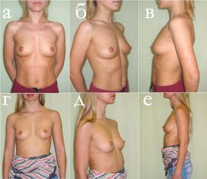 Преимущества (?) каплевидных имплантатов перед круглыми в коррекции и профилактике птоза аугментированной молочной железы