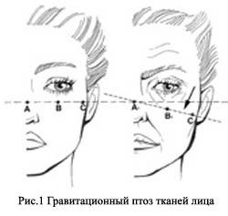 Возрастные изменения лица и шеи: классификация, геронтогенез, подходы к коррекции