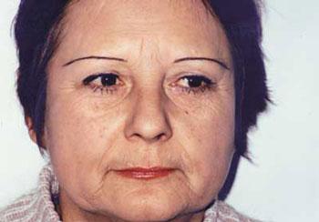 Тактика ведения пациентов с пограничными инволюционными изменениями. Взаимодействие дерматокосметологов и пластических хирургов.