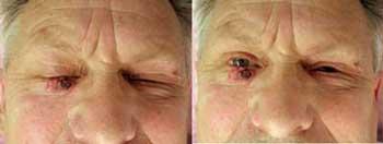 Сложный случай лазеродеструкциИ метатипического рака кожи